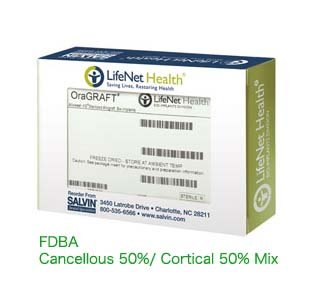 FDBA 50% Cancellous 50% Cortical Mix 1.0cc